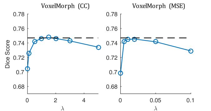 VoxelMorph: A Learning Framework for Deformable Medical