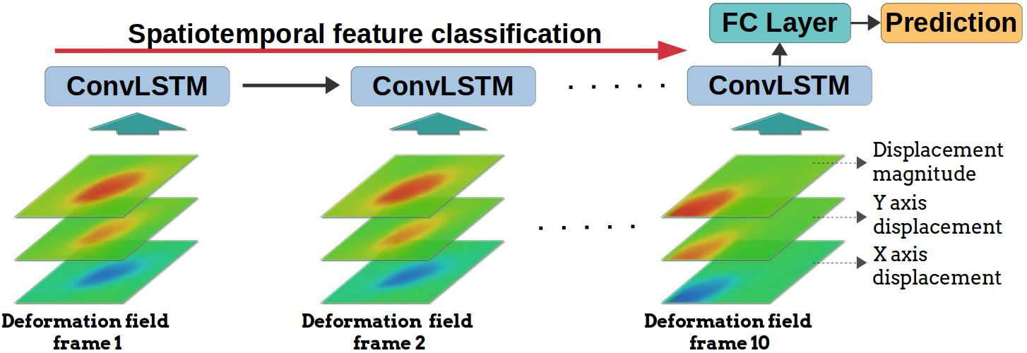FingerVision Tactile Sensor Design and Slip Detection Using