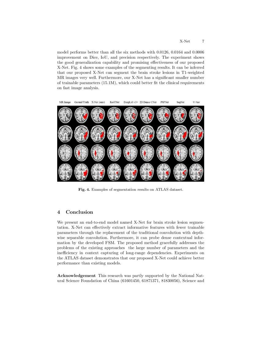 X-Net: Brain Stroke Lesion Segmentation Based on Depthwise